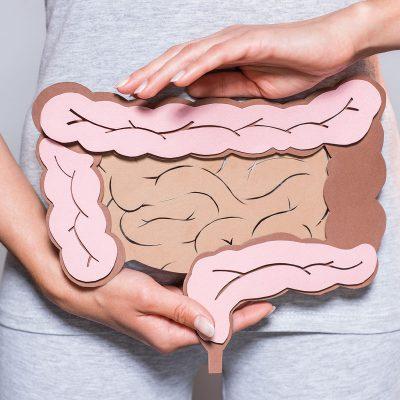 colon inflamado irritado